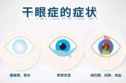 卡波姆眼用凝胶怎么样?效果好吗?